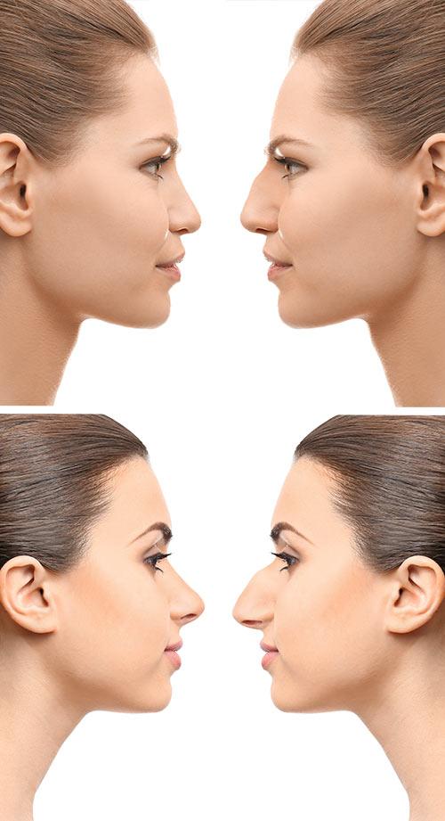 Intervento di rinopalstica chirurgia estetica del naso for Interno del naso